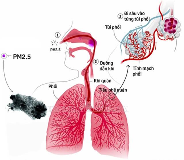 bụi mịn đi vào phổi gây ung thư phổi